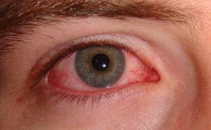 Pink Eye image